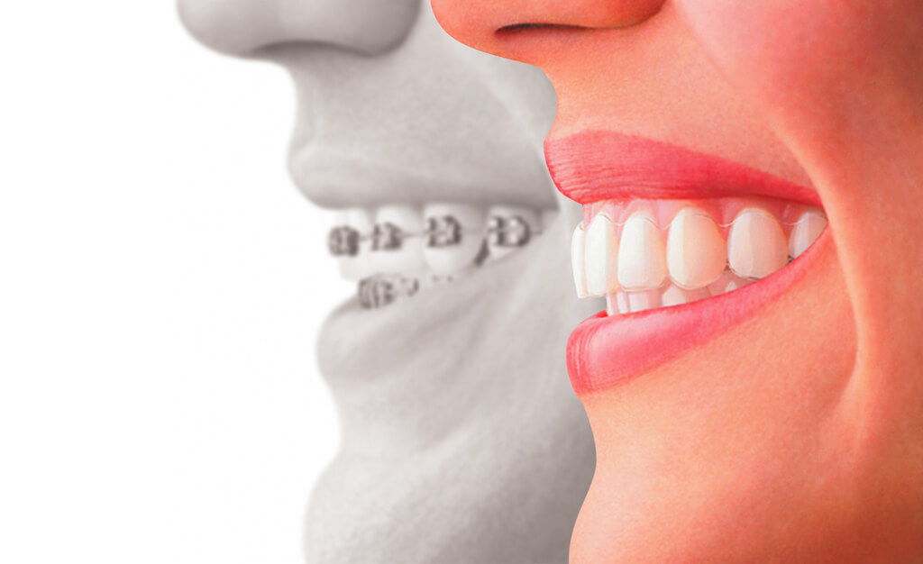 Braces vs. Invisalign– Which One Is Better?