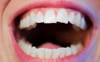 Stages of Gum Disease and How to Deal With It
