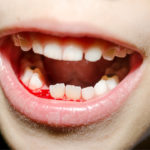 Dealing with A Dental Accident