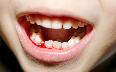 Tips for Dealing with A Dental Accident