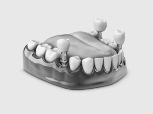 tooth implant loose