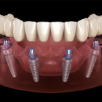 cost of all on 4 dental implants